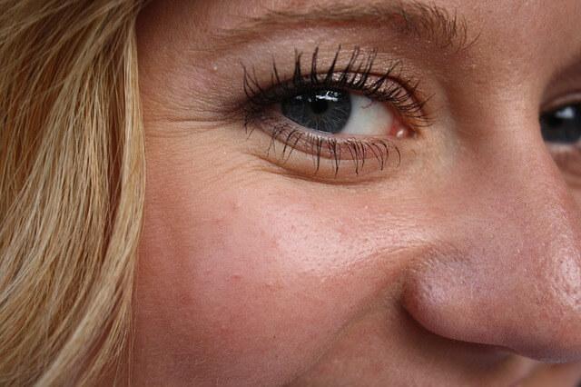 Mezoterapia igłowa – czym jest?